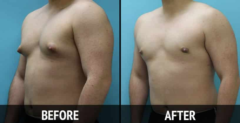 Options Fat Teen Results 32