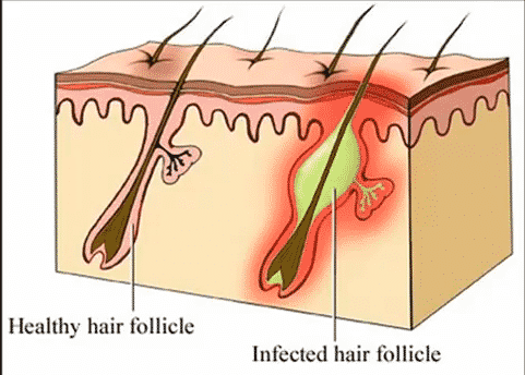 One of the main causes of boils.