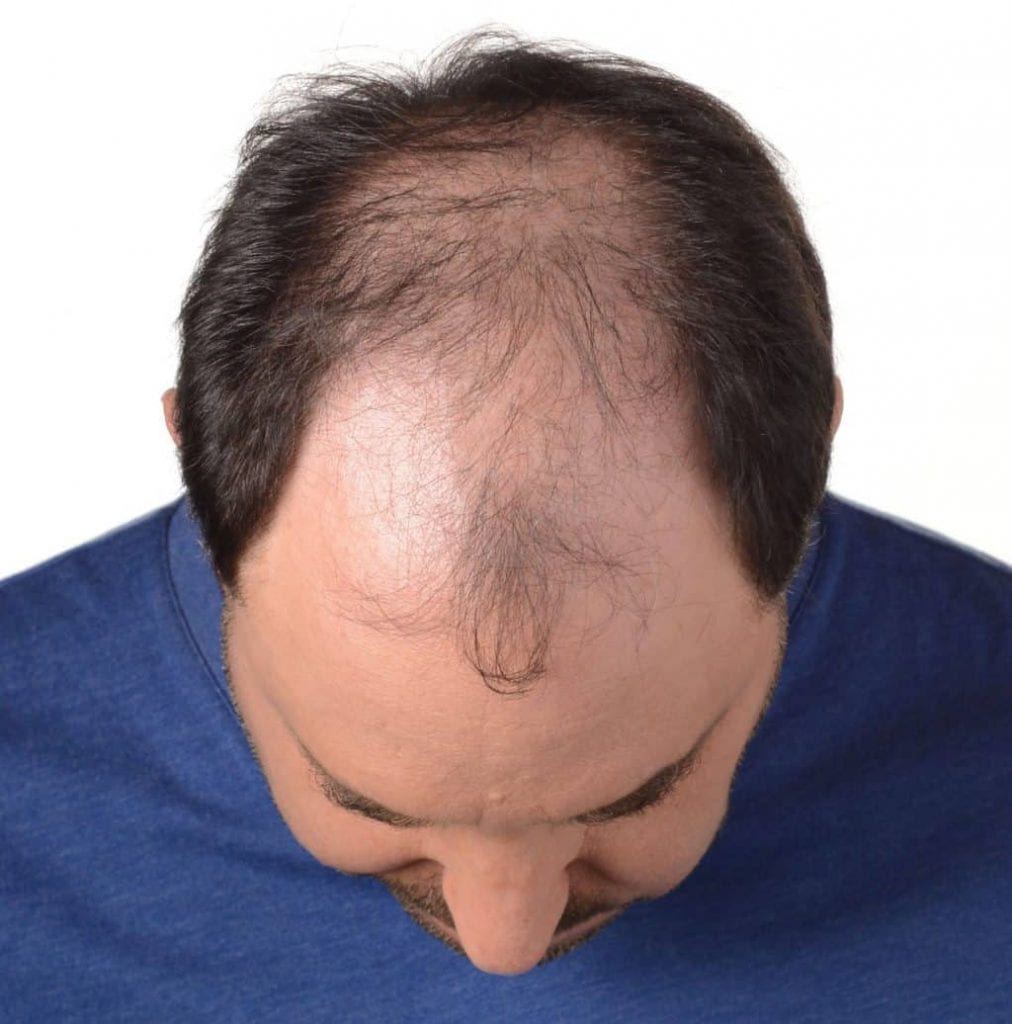male pattern baldness as a result of clogged arteries