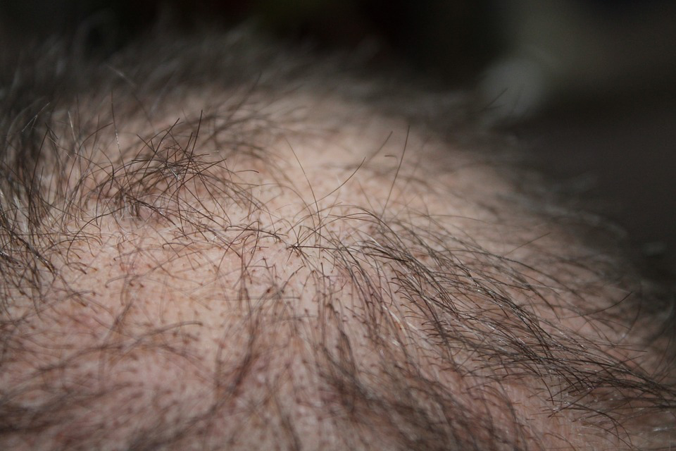 super foods for preventing hair loss