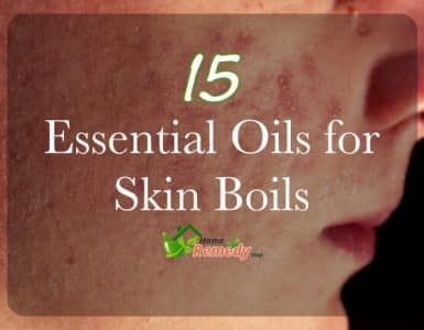 how to get rid of acne boils on face