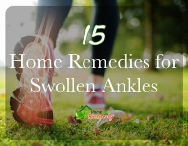 woman running illustration caption how to heal swollen ankles