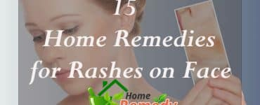 home remedies for rashes on face