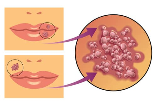 Cold Sores inside Mouth