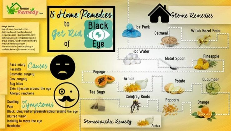 HRS infographic about getting rid of a black eye at home