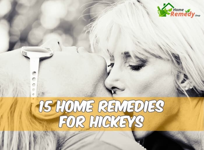 couple kissing caption home remedies for hickeys