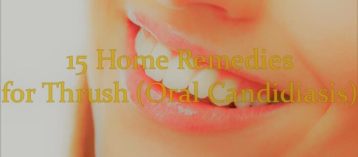 picture of a smile with caption home remedies for thrush