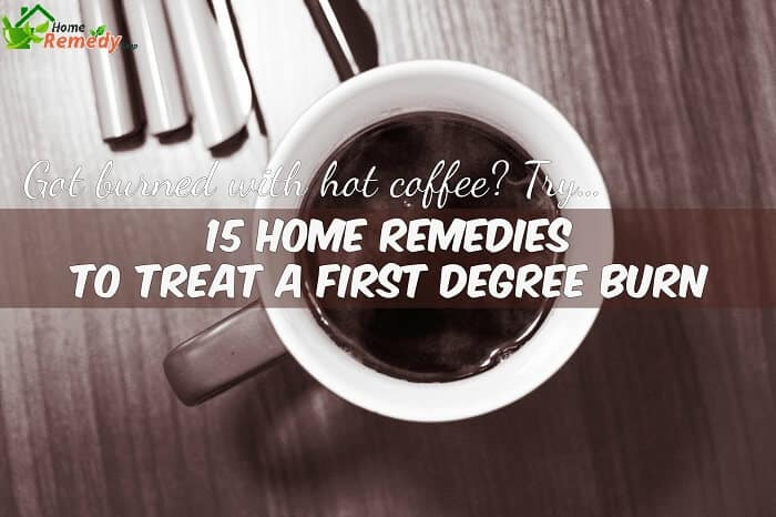 hot coffee on table caption home remedies for first degree burn