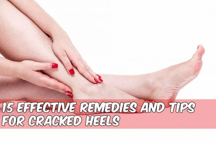 cracked heels with caption how to heal