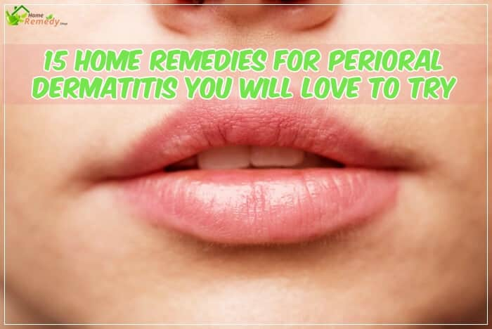 pink lips mouth plus caption home remedies perioral dermatitis