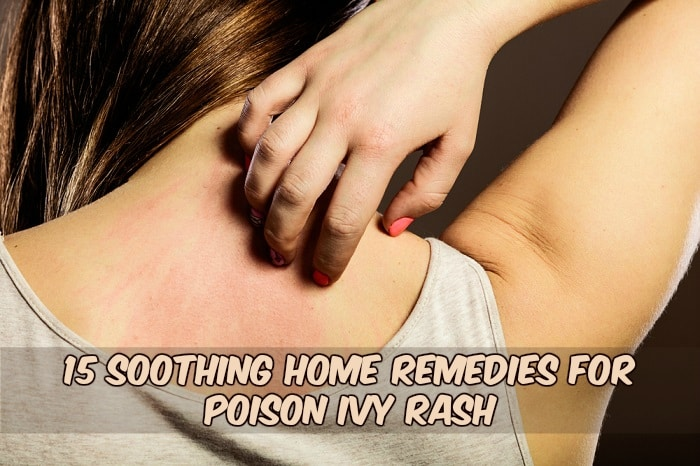 poison ivy rash