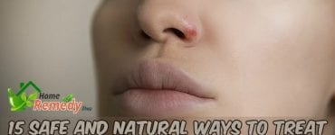 woman with impetigo on nose