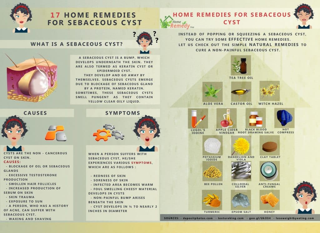 17 Home Remedies for S...