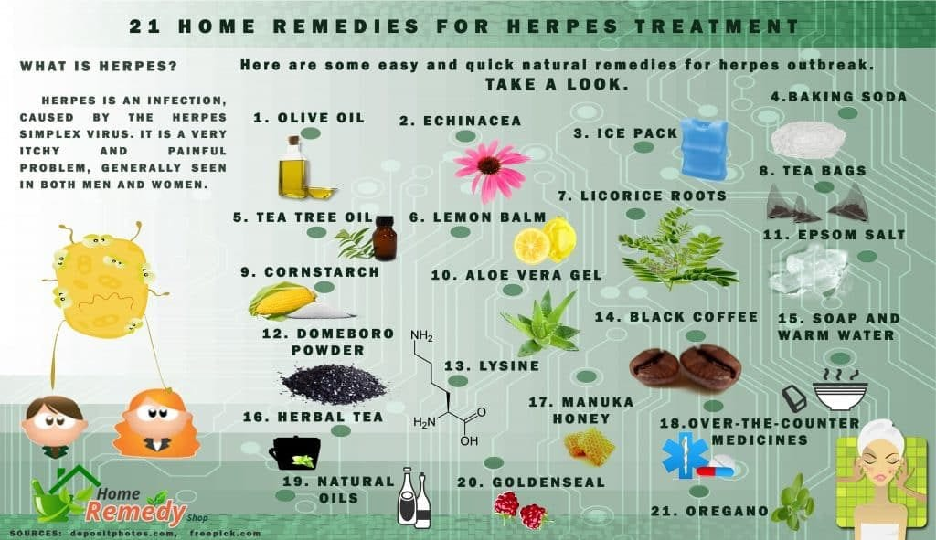 List of 21 home remedies for herpes treatment