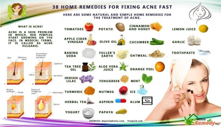 Looking for home solutions to fix acne fast before going out?