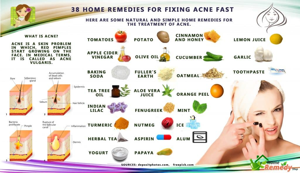 Home Remedies For Acne Marks On Back
