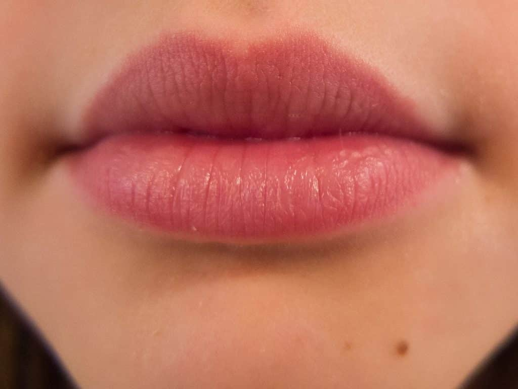 30 simple home remedies for cold sores home remedies ccuart Choice Image