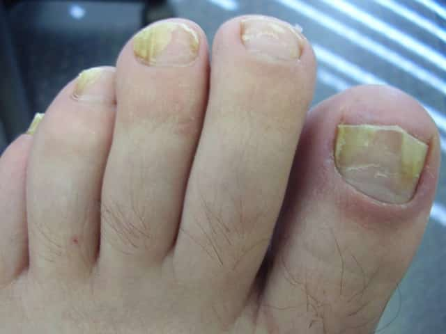 17 Home Remedies For Toenail Fungus