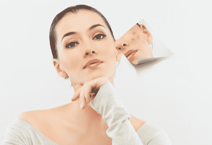 Keep your acne prone skin in a healthy shape with these few tips