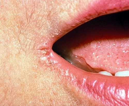 This is how anglular cheilitis looks like.