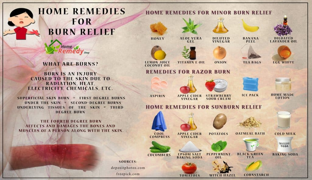 Best Natural Remedy For Burns
