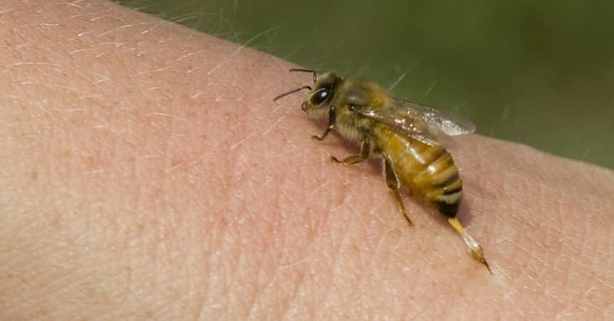 The bee sting can be not only unpleasant, but quite dangerous.