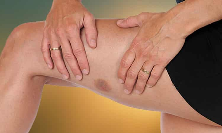 How do you care for a bruise naturally?