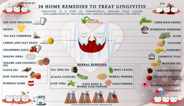 28 Home Remedies To Treat Gingivitis Home Remedies