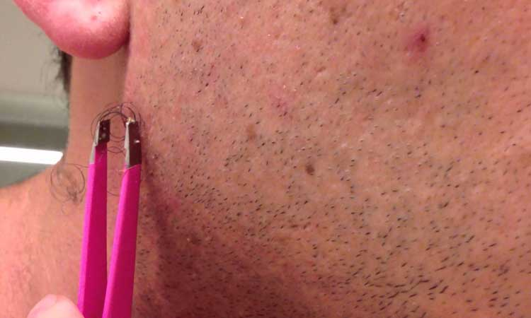 17 Home Remedies To Expose The Trapped Ingrown Hair Home