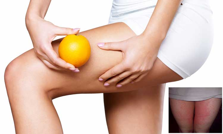 jock itch home remedies