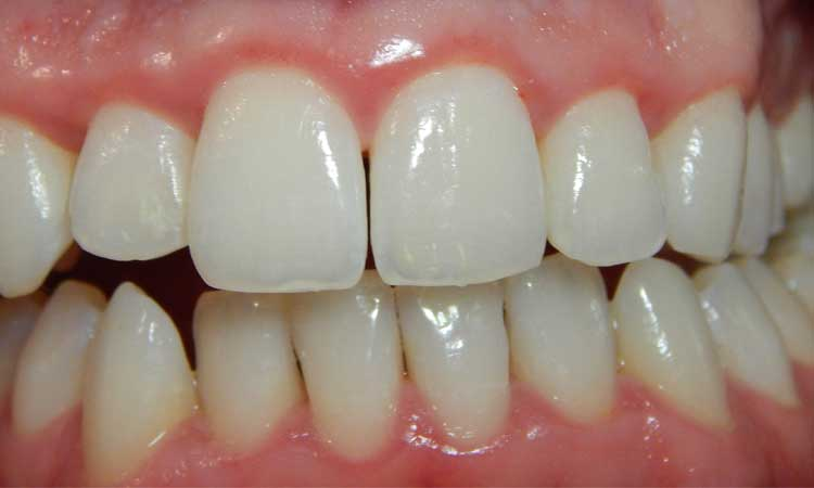 Image Source : http://commons.wikimedia.org/wiki/File:Gingivitis-after.JPG