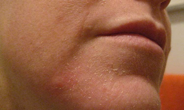 Diagnose My Skin Rash - Healthy Skin Care