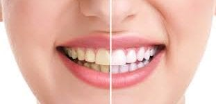 How to whiten teeth at home? It's easy with these guidelines.