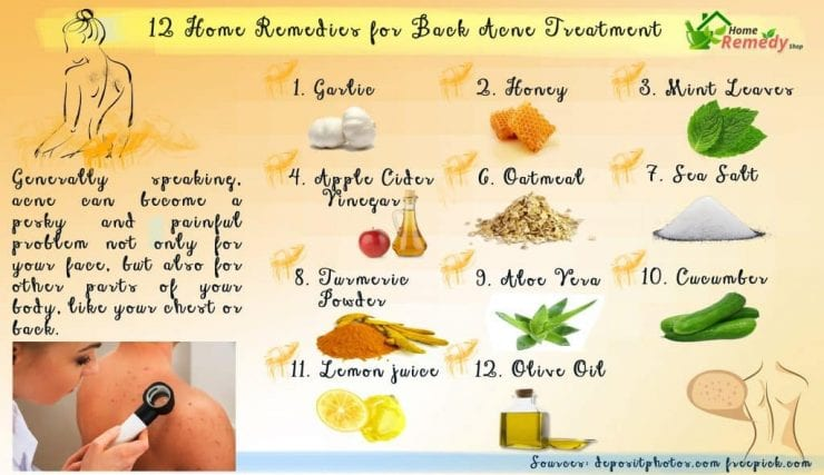 Garden Shed Diy Plans Free How To Get Rid Of Back Acne And Scars Overnight