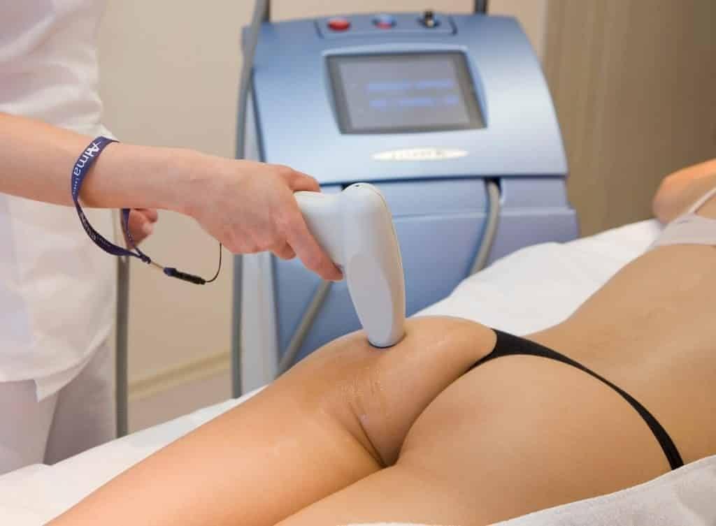 laser-treatment