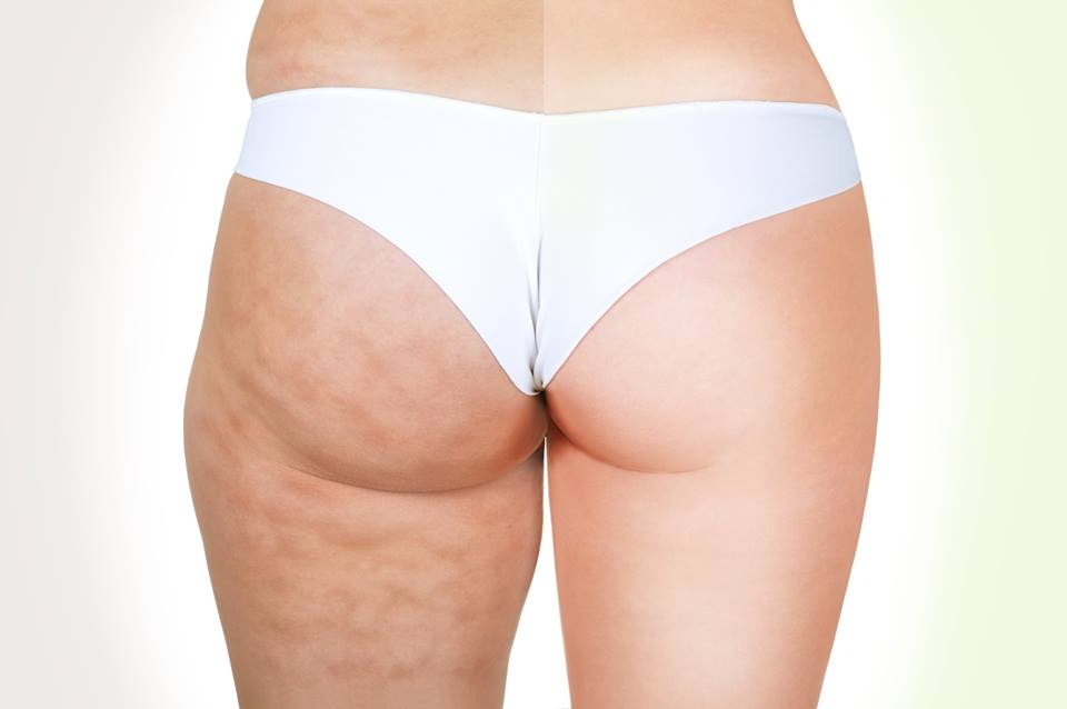 what-is-cellulite