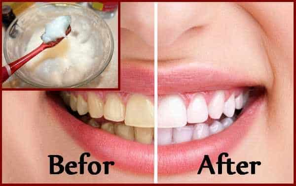 diy teeth whitening by brushing teeth with baking soda