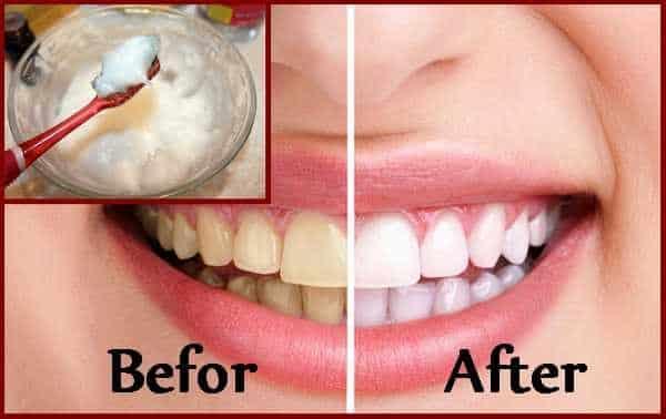 diy teeth whitening by brushing teeth with baking soda