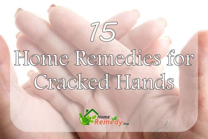 Women's cracked hands