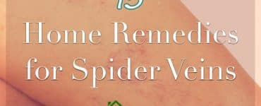 spider veins on hand caption home remedies for spider veins