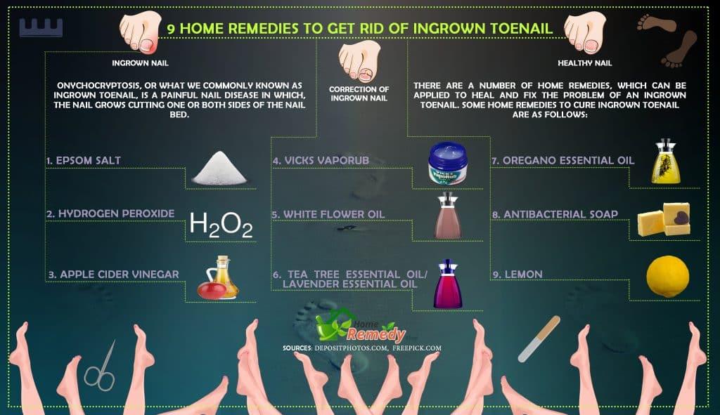 9 Home Remedies to Get Rid of Ingrown Toenail - Home Remedies