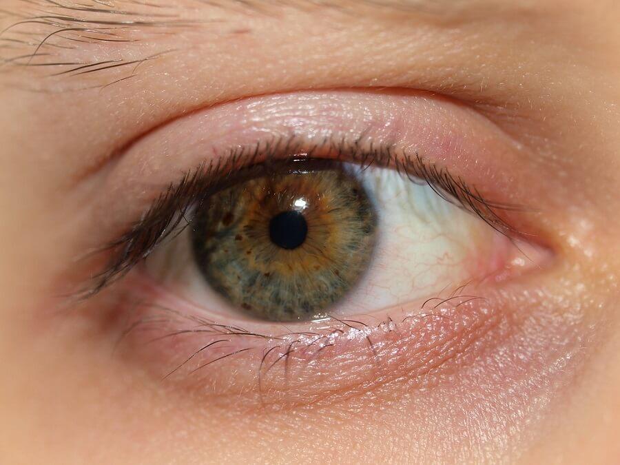 Fatigue black circles under the eyes