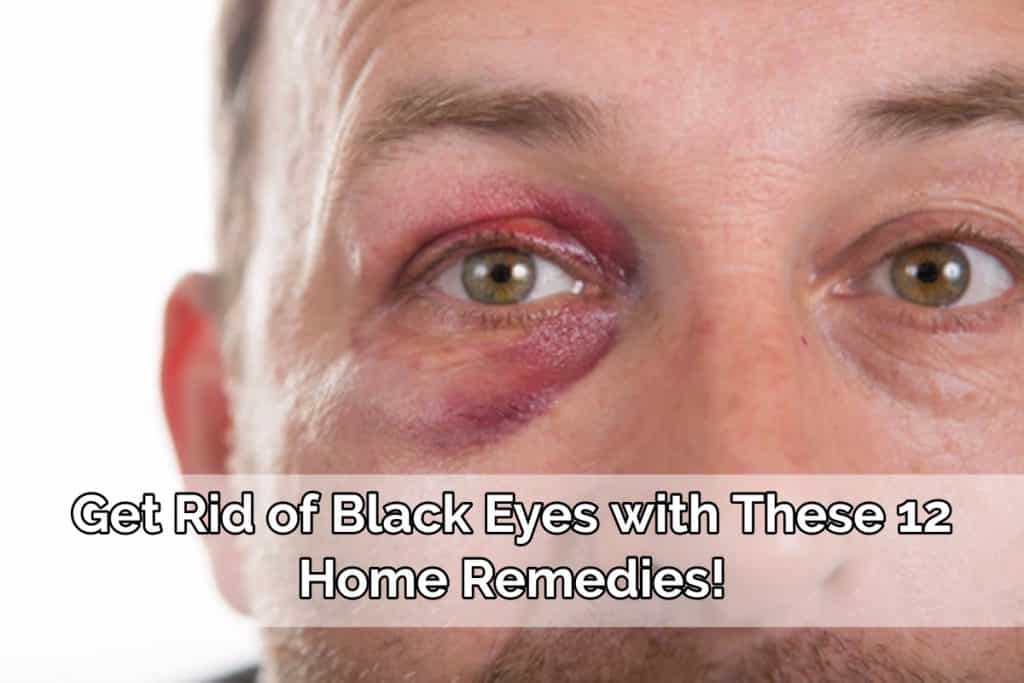Get Rid Of Black Eyes With These 10 Home Remedies