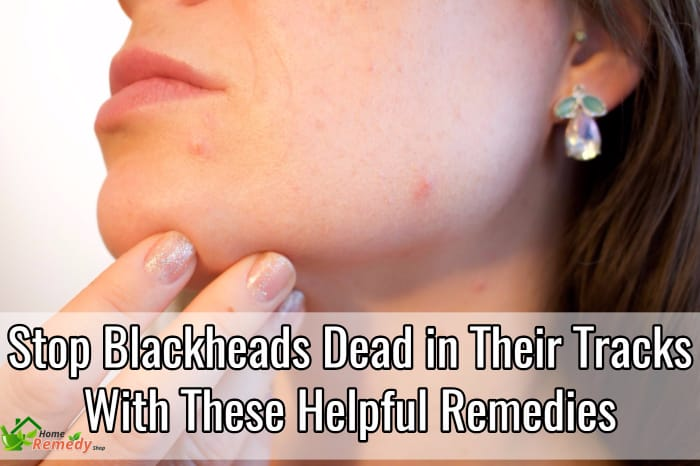 black head removal