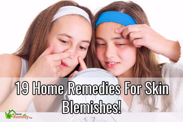 How to get rid of blemishes fast at home