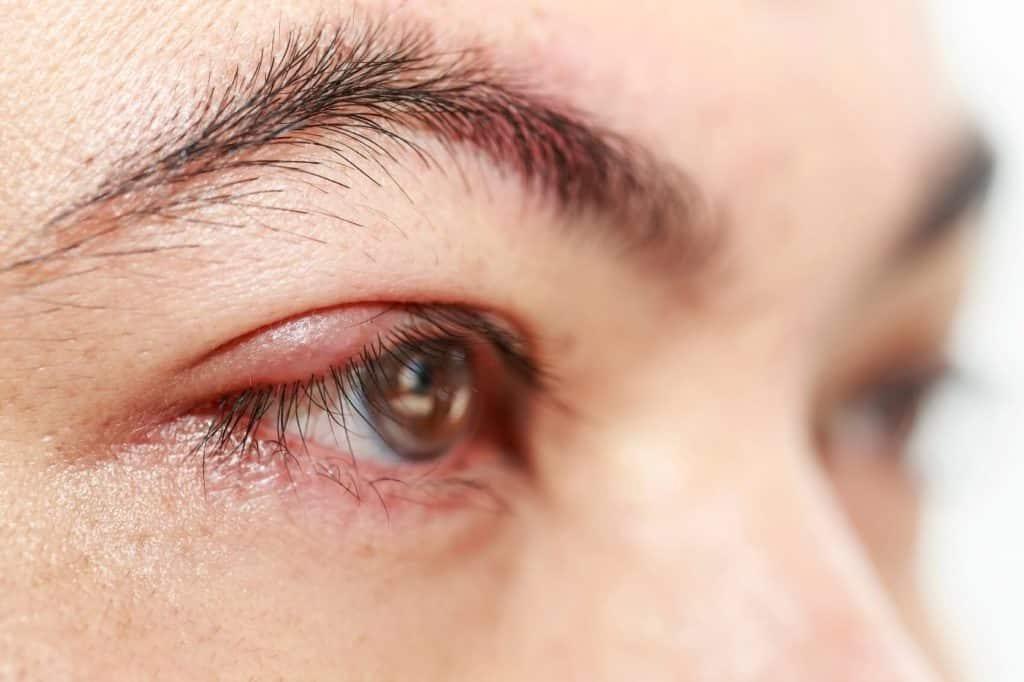 blepharitis-side-view