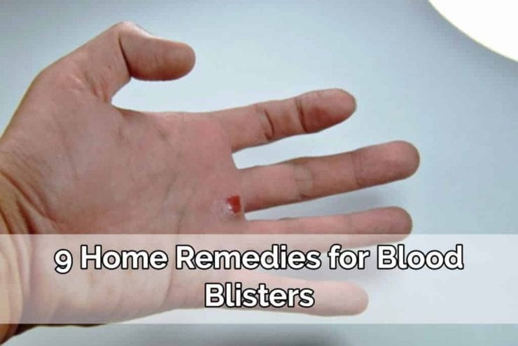 blood blisters