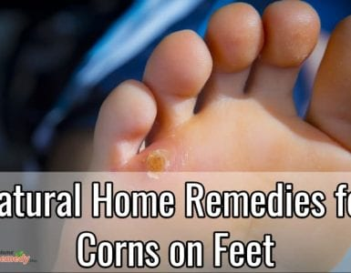 corns on feet
