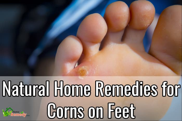 corns on feet