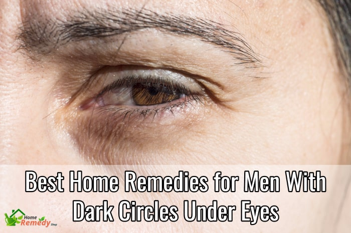 Best Home Remedies for Men with Dark Circles Under Eyes ...